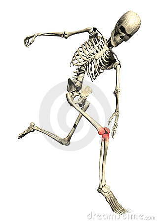 Running-skeleton-sore-inflamed-knee-13554447